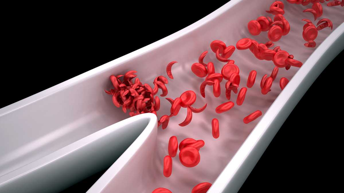 Keeping a log of your sickle cell pain